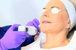 Cosmetic Laser Treatment Injury